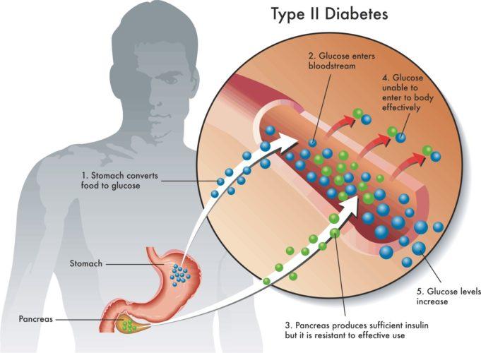 какая норма холестерина в крови у мужчин