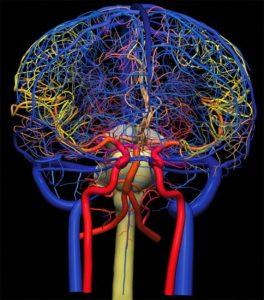Сужение сосудов головного мозга: причины, симптомы, лечение